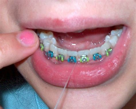 childrens braces for teeth picture 3
