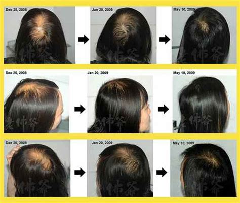 treatment for womens hair loss picture 7