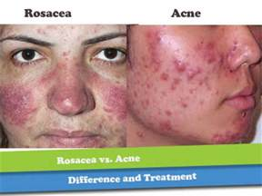 can a strenous workout harm acne picture 1
