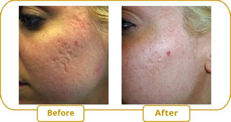 delaware newark acne and scar treatment md picture 1