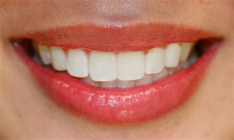 whiten your teeth to the max fast free picture 8
