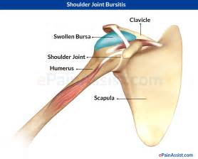 shoulder joint pain picture 13