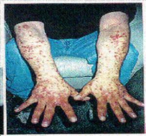 meth skin disorders picture 3