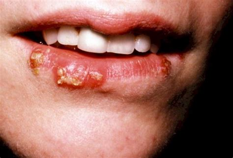 herpes virus mouth picture 6