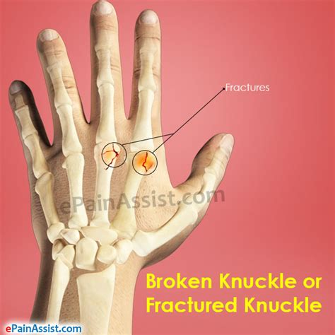 home remedies for knuckle pain picture 1
