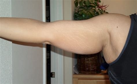 do stretch marks on a man bother women picture 4