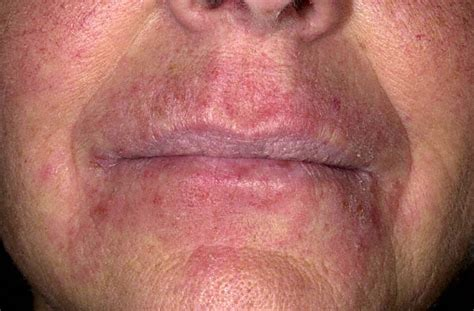 pics of alergic reactions on lips picture 10
