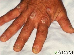 flaky dandruff like skin on body picture 7