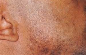 cultured skin picture 3