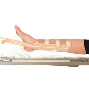 skin traction therapy picture 9