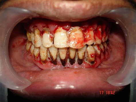 that have teeth picture 5