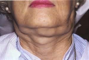 lymphoma symptoms picture 7