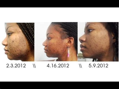 chemical ls on african american skin picture 6