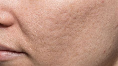 acne scarring pictures picture 11