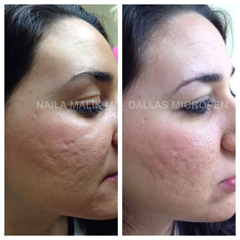 delaware acne and scar treatment md picture 6