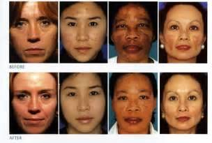 dr. forte skin care picture 15
