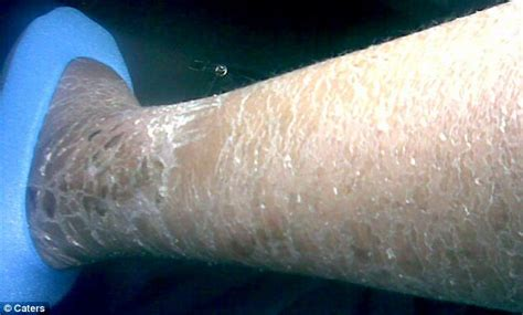 dry skin on legs picture 7