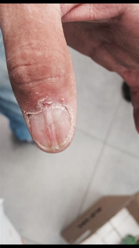 warts treatment picture 5