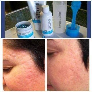 delaware newark acne and scar treatment md picture 6