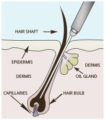 electrolysis hair removal in maldives picture 14