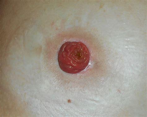 colon polyps picture 13