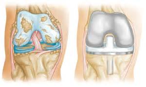 joint implant surgeons picture 3