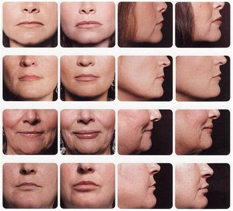 lip augmentation permanent safe fda picture 15