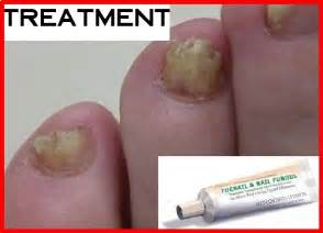 tea tree oil and nail fungus picture 2