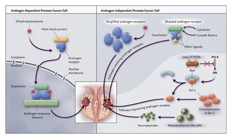 Treatment for prostate cancer picture 11