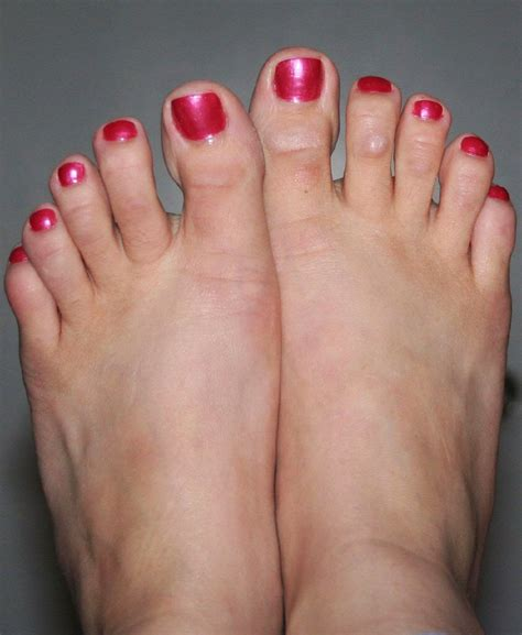joint ball foot pain picture 14