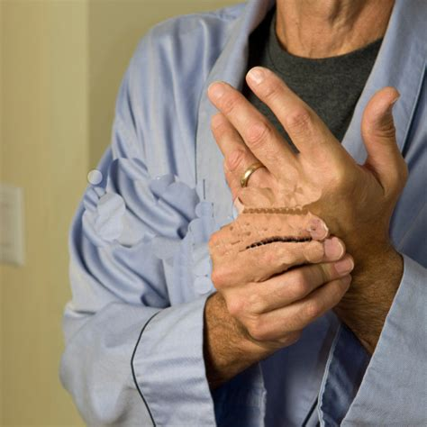 arthritis aches picture 6