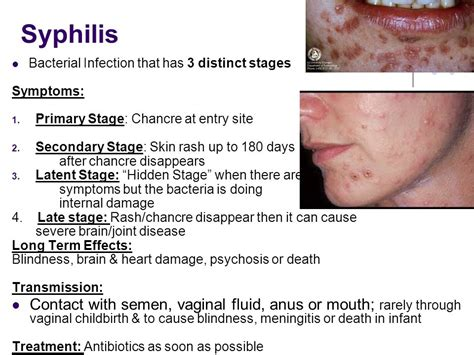 general stages of bacterial infection picture 18