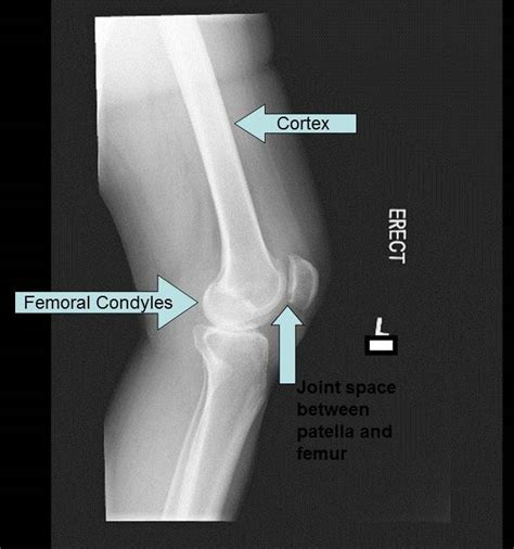 medial knee pain + joint space picture 15