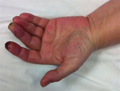 feet burning swelling hands swelling lexapro picture 9