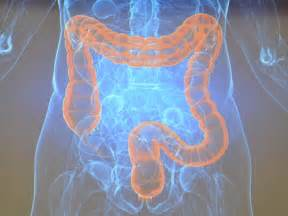 colon cancer experts picture 13