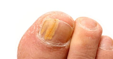 feet skin problems picture 5