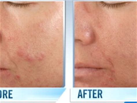 acne health submit url picture 5