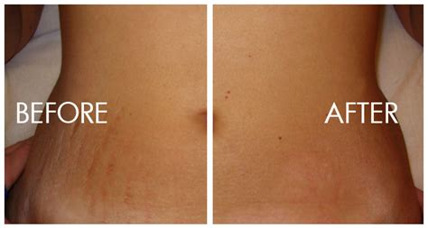 how to treat stretch marks picture 5