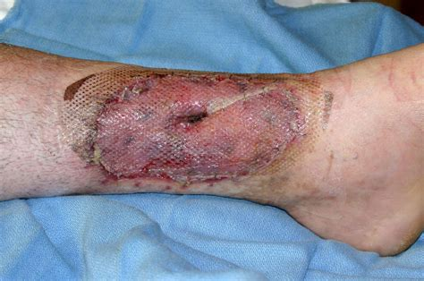 friction burn and skin grafting picture 9