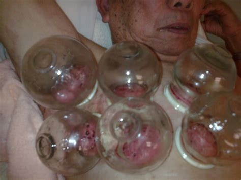 china cure herpes picture 2