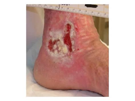 care for skin ulcers picture 2