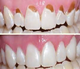 cavity cover for teeth picture 5