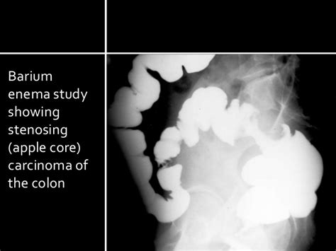 colon cancer diagnosis barium picture 5