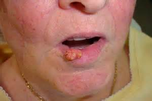 pictures of genital warts in the mouth picture 1