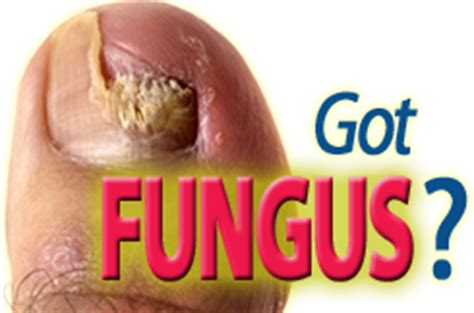 laser treatment fungus toe in florida picture 3