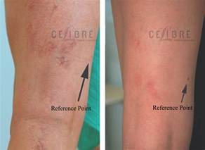 stretch mark removal costs picture 10