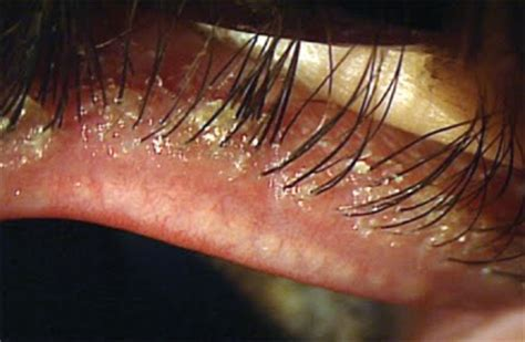 azasite and rosacea blepharitis picture 2