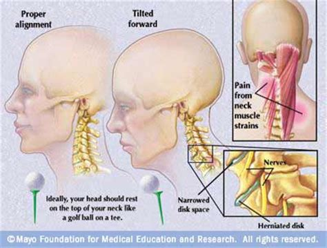 can h cause neck pain picture 5