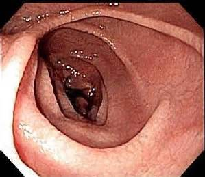 ibs or colon cancer picture 7