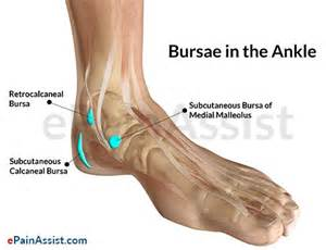 ankle joint pain picture 7